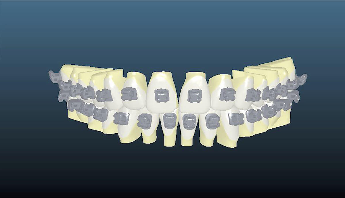 Ormco Insignia - Braces computer imaging shows perfect alignment of teeth.
